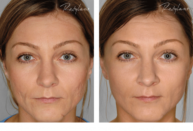 Restylane-before-after-full-face-Havant