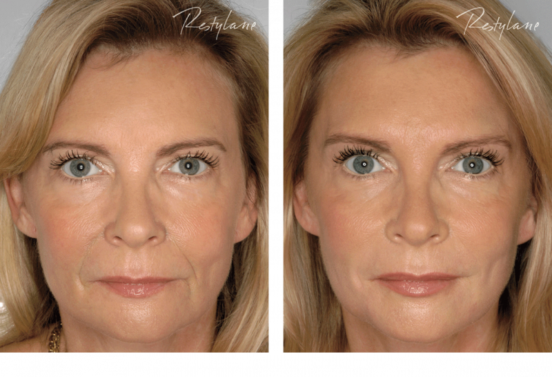 Restylane-before-after-full-face-10