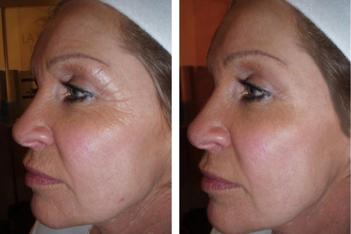 Anti-wrinkle Caci
