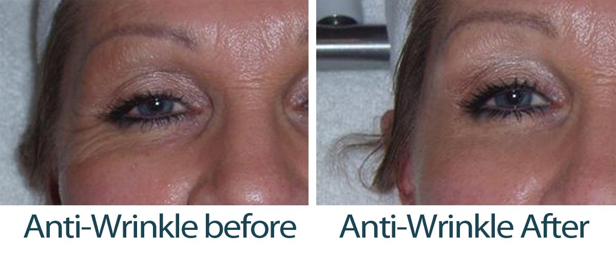 Anti-wrinkle2 caci