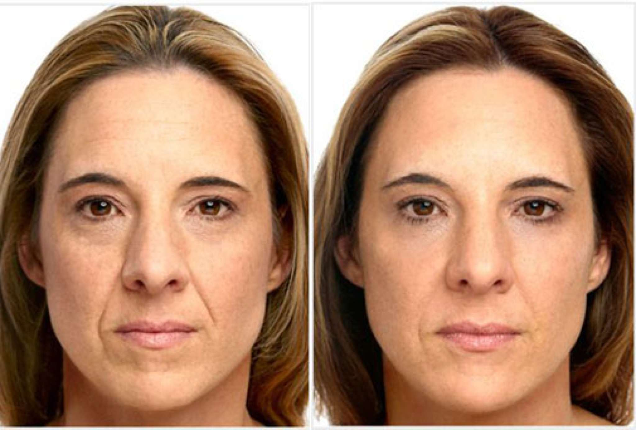 Botox clinic Havant