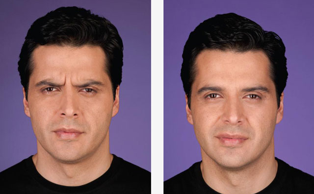 male-botox-before-after-drlori